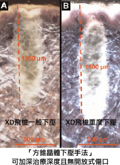 XD飛梭雷射「方錐晶體下壓手法」