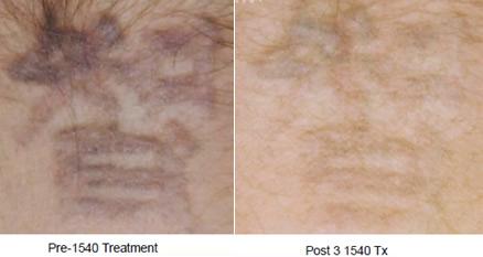 XD飛梭雷射祛除刺青移除疤痕